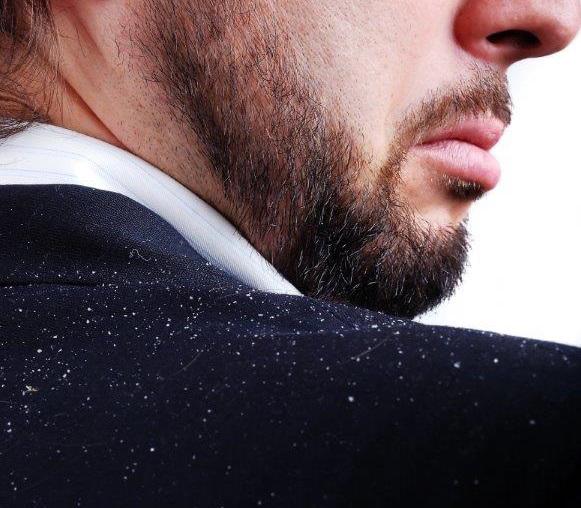 Homem com casaco sujo de caspa