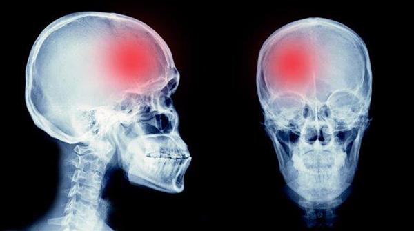 Radiografia de crânio com zona assinalada a vermelho