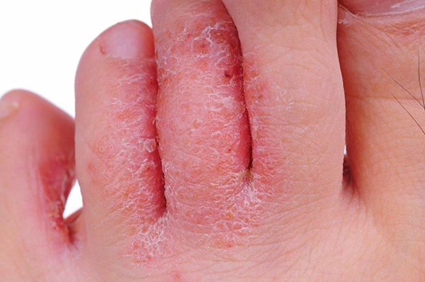 Pele afetada pelo fungo do pé de atleta