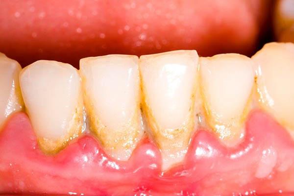 Gengivas inflamadas e com periodontite
