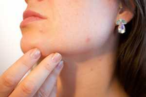 pilula acne