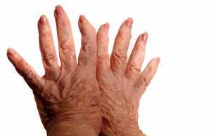 Mãos de mulher com artrite psoriática
