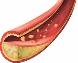 Artéria obstruída a ilustrar a aterosclerose