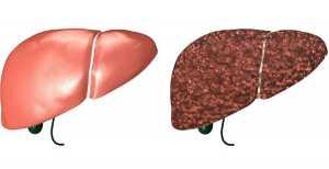 Fígado saudável e fígado com cirrose