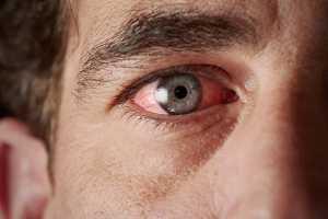 Homem com olho inflamado