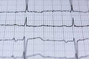 Electrocardiograma a ilustrar os fatores de risco da doença coronária