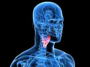 Cancro laringe