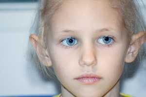 Menina de olhos azuis com falta de cabelo devido a quimioterapia
