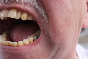 Homem com a boca aberta