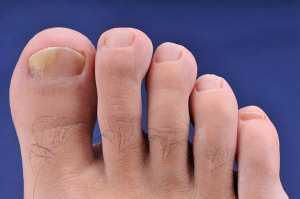 Dedos do pé com fungo na unha grande