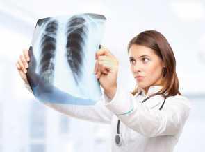 Médica a olhar para radiografia ao tórax