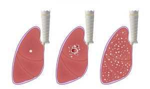 Evolução da tuberculose no pulmão