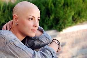 Mulher sem cabelo devido a quimioterapia