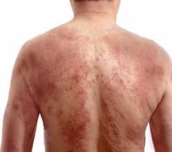 Homem com babas nas costas devidas a urticária