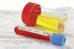 Clinica de exame de sangue