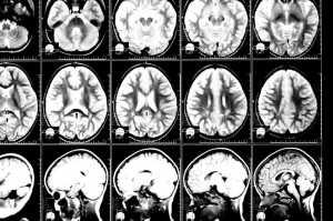 Exame encefalograma