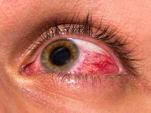 Lesão ocular