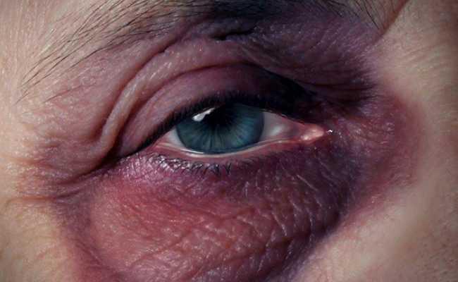 Olho com hematoma